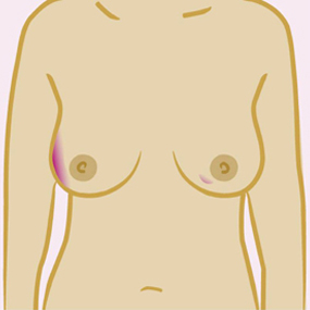 A lump or thickening that feels different from the rest of the breast tissue
