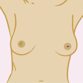 If your nipple becomes inverted (pulled in) or changes its position or shape