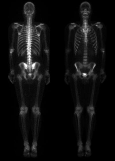 nuclearMedicineBoneScan