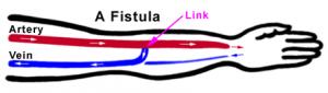 A Fistula