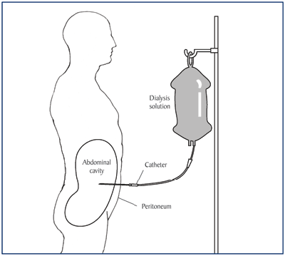 Diagram showing position of peritoneal dialysis catheter