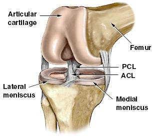 What is an ACL reconstruction