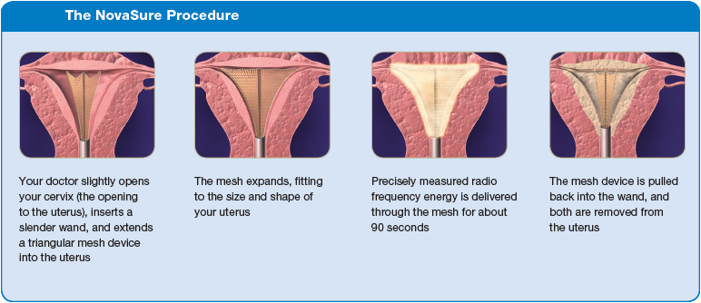 The NovaSure Procedure
