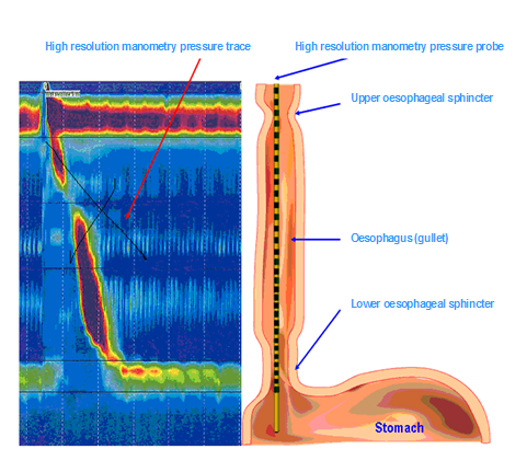 What is high resolution oesophageal manometry