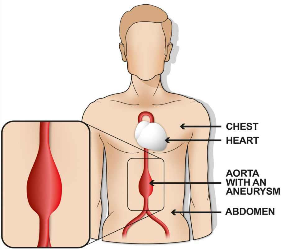 Abdominal Aortic Aneurysm Also Known As Aaa And Triple A Hull