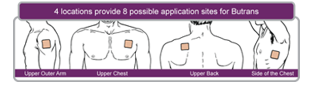 lidocaine patch for back pain uk