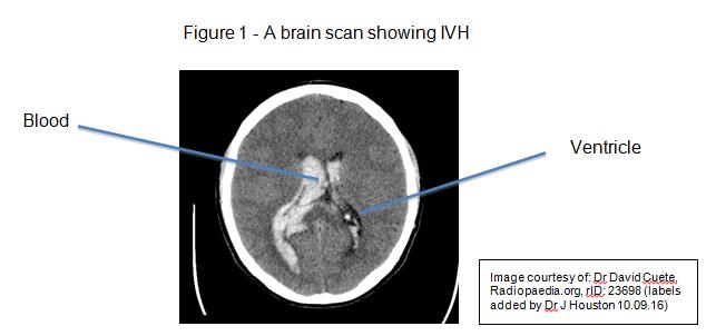 Intraventricular Haemorrhage (IVH) – Information Leaflet for Parents ...